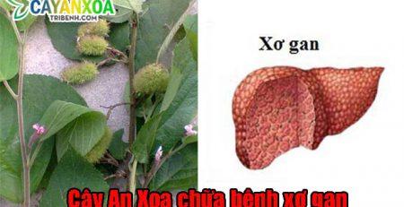 dieu-tri-xo-gan-bang-cay-an-xoa